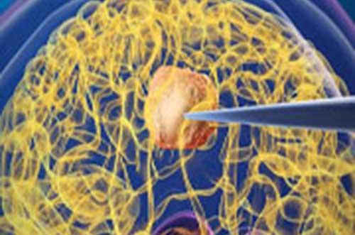 تشخیص و درمان همزمان سرطان با استفاده از فناوری نانو